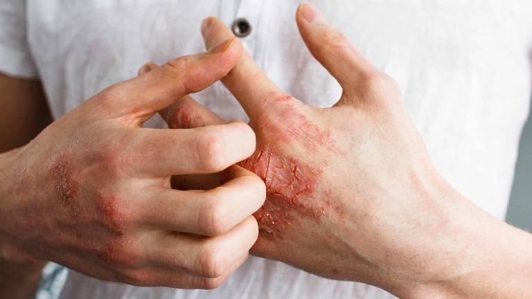Nguyên nhân gây ra bệnh chàm