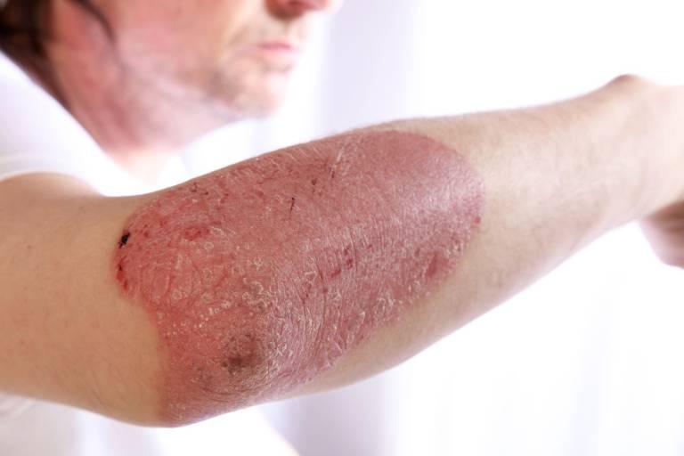 Triệu chứng nhận biết của bệnh chàm