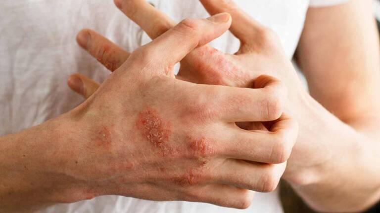 Nguyên nhân gây bệnh tổ đỉa