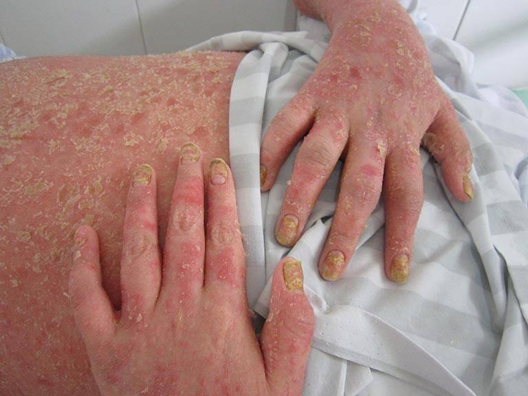 Phân loại bệnh vảy nến