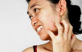 Dị ứng da: Nguyên nhân và cách điều trị