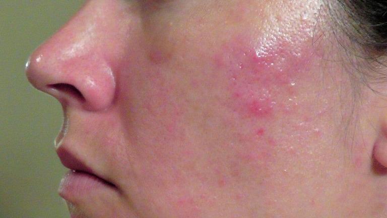 nguyên nhân gây dị ứng da