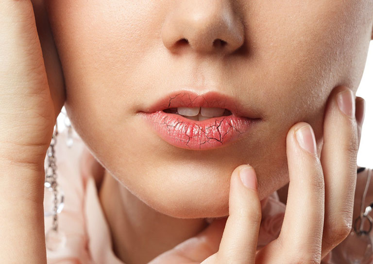 bị dị ứng son môi nên làm gì