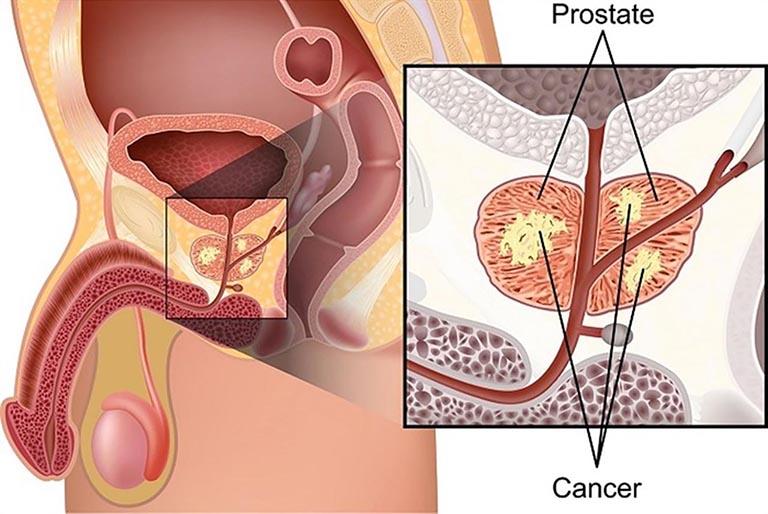 lợi ích của quan hệ tình dục thường xuyên giúp giảm ung thư tuyến tiền liệt