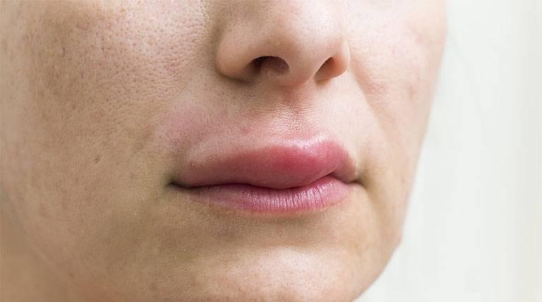 Ngủ dậy bị sưng môi trên là do đâu?