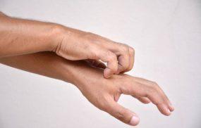 Bị ngứa châm chích dưới da: Nguyên nhân và cách chữa khỏi