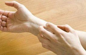 Ngứa chân tay về đêm: Cách điều trị và phòng ngừa ngăn tái phát