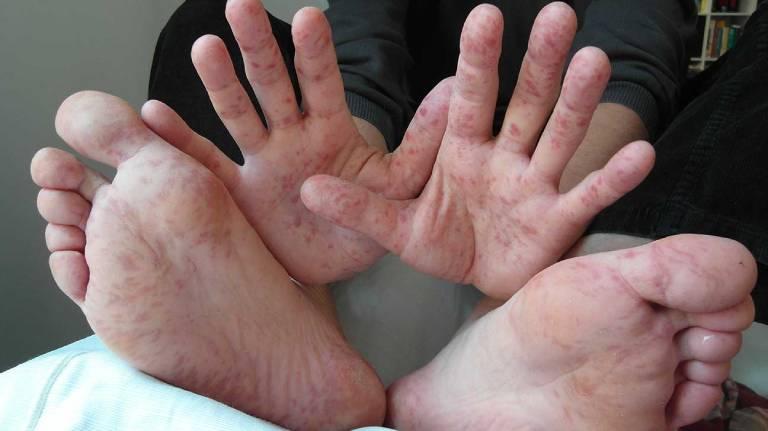 Nguyên nhân gây ngứa chân tay về đêm