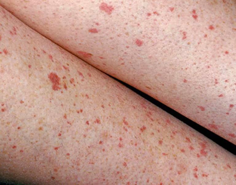 Nổi nhiều nốt ruồi đó trên da