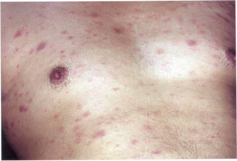 Các dấu hiệu nhận biết nổi mề đay do HIV