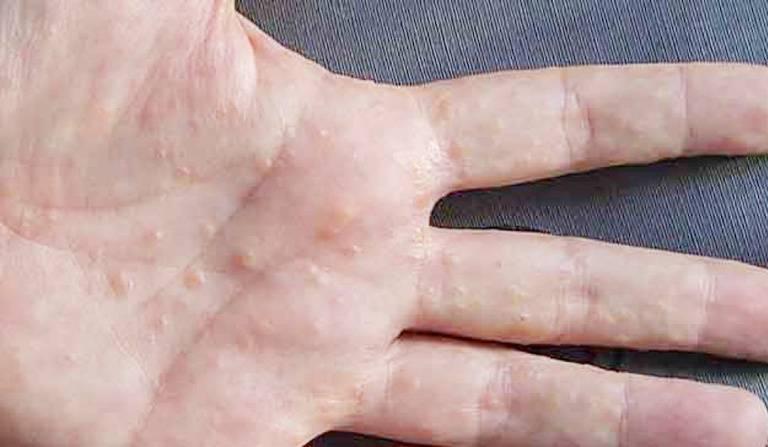 Nổi mụn nước ngứa ở chân tay là bệnh gì? Làm sao hết?