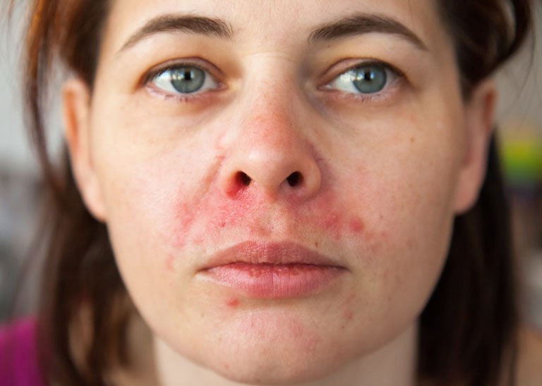 bệnh viêm da dầu và cách điều trị