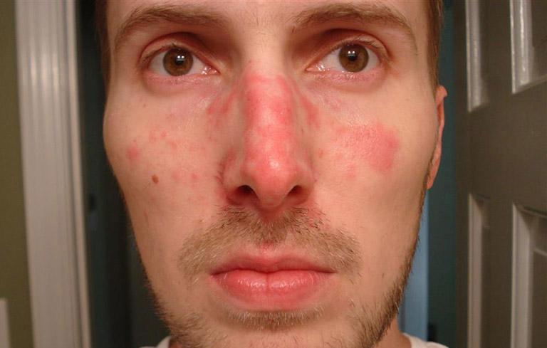 viêm da dầu ở mũi