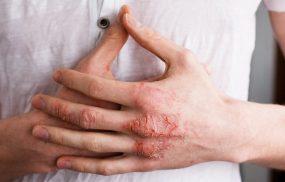 Bệnh viêm da tiếp xúc: Nguyên nhân, Triệu chứng, Cách điều trị