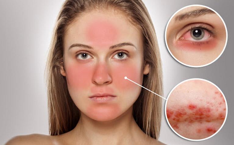 viêm da tiếp xúc gây sẹo không