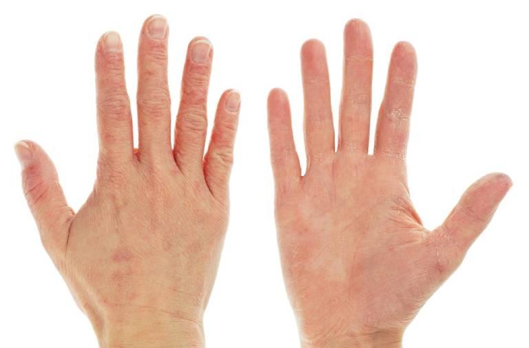 Bệnh viêm da tiếp xúc có nguy hiểm không?