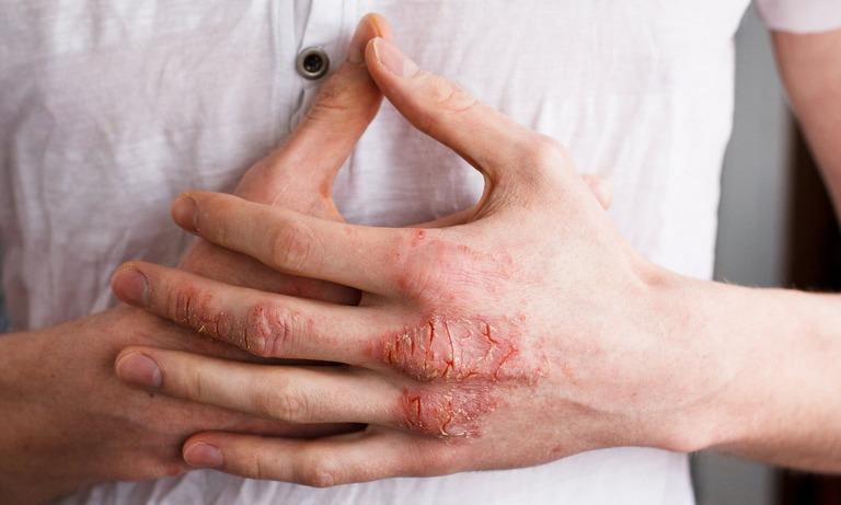 Nguyên nhân gây bệnh viêm da tiếp xúc