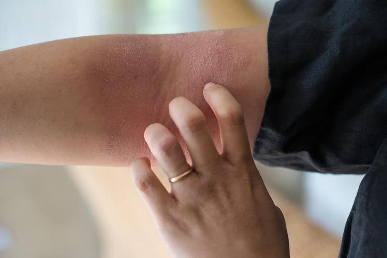 triệu chứng của bệnh viêm da tiếp xúc
