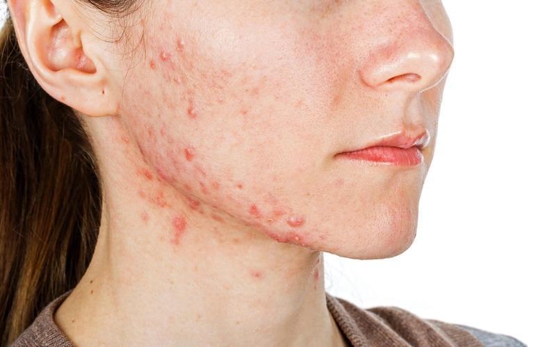 Bệnh viêm da tiếp xúc ở mặt