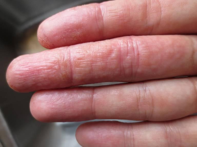 Ưu- Nhược điểm chữa bệnh tổ đỉa bằng thảo dược dân gian