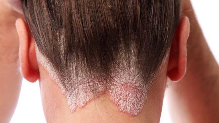 Bệnh vảy nến da đầu: Thuốc và cách trị hiệu quả