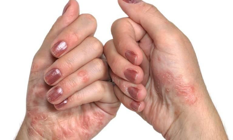 Vùng da tổn thương có màu đỏ đặc trưng, khi sờ vào bề mặt da sẽ có cảm giác cộm như vỏ sò