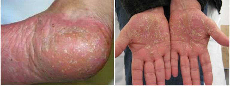 Các triệu chứng của bệnh sẽ bùng phát thành từng đợt và khu trú ở lòng bàn chân và lòng bàn tay