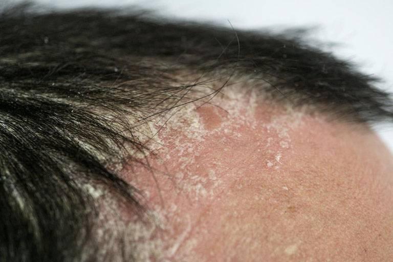 Các triệu chứng của bệnh vảy nến da đầu khiến người bệnh khó chịu và dễ gây ra tình trạng rụng tóc