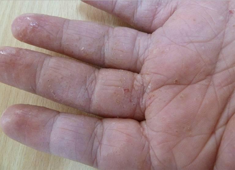 Tác dụng của lá lốt trong chữa bệnh tổ đỉa