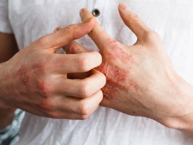 Lưu ý khi sử dụng lá trầu không chữa bệnh chàm