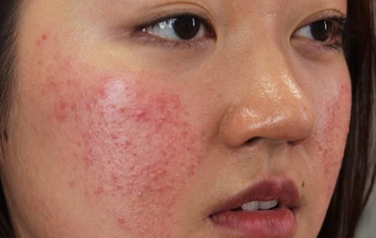 Da mặt bị dị ứng nổi sẩn ngứa có nguy hiểm không?