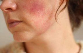 Da nhiễm Corticoid: Nguyên nhân và cách điều trị