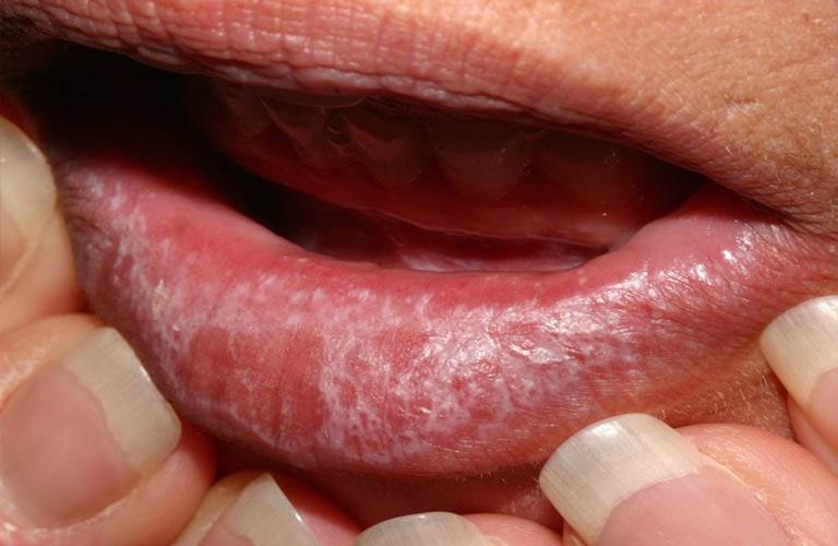 Xơ hóa Lichen gây nổi đốm trắng không ngứa trên da