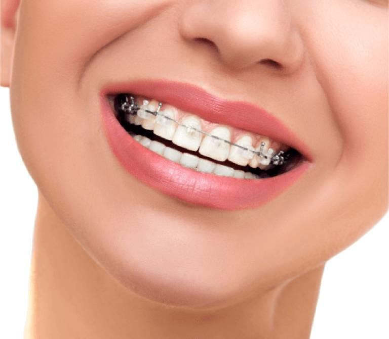 Top 10 địa chỉ niềng răng uy tín hàng đầu tại TPHCM