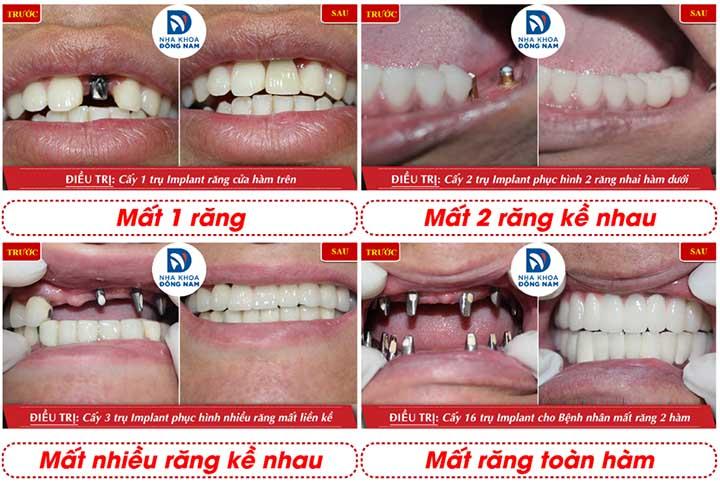 Địa chỉ trồng răng implant uy tín nha khoa đông nam sài gòn