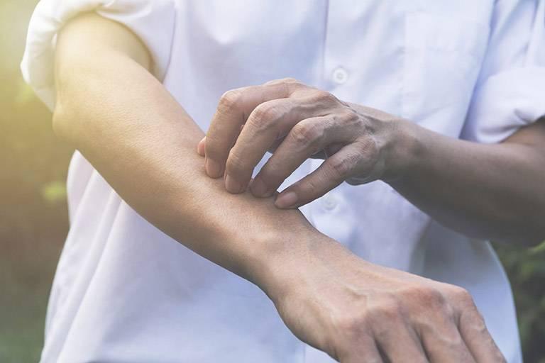 Các triệu chứng của bệnh mề đay Cholinergic