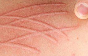 Mề đay da vẽ nổi: Cách nhận biết và điều trị hiệu quả