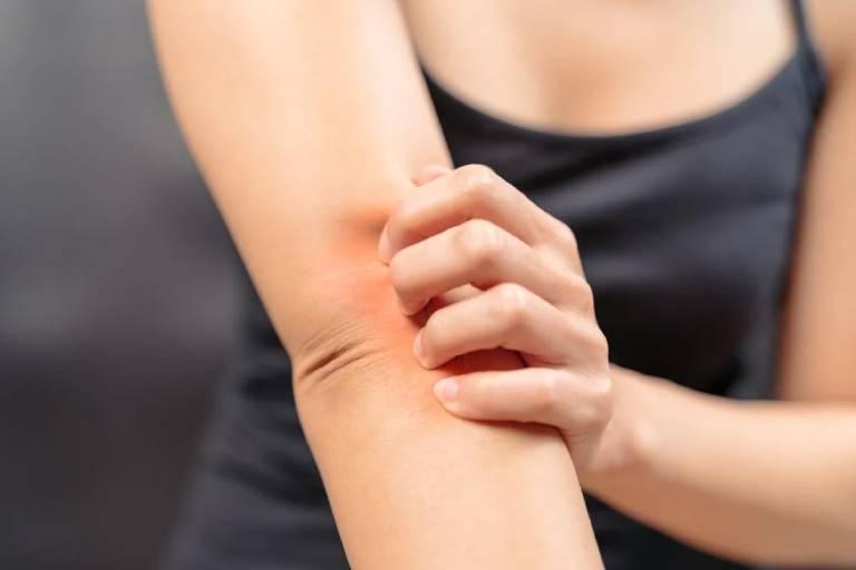 Bệnh lý về gan gây ngứa khắp người không nổi mẩn