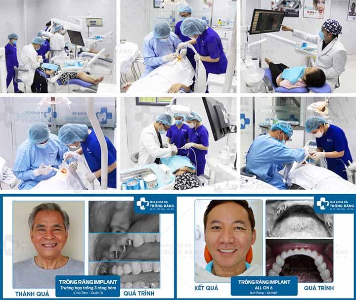 Nha khoa trồng răng implant Sài Gòn uy tín