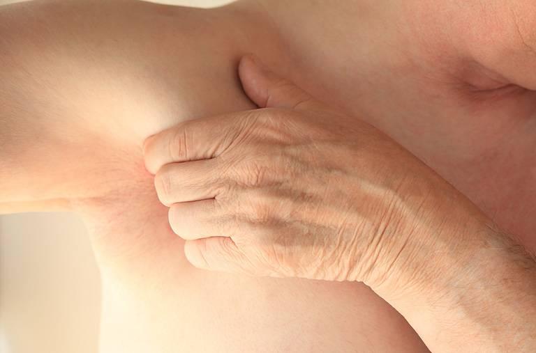 Viêm da bã tiết gây nổi mẩn ngứa ở nách