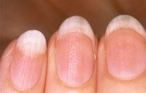 Vảy nến móng tay: Dấu hiệu nhận biết và điều trị sớm