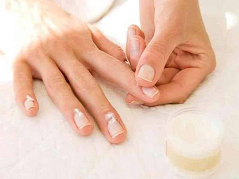 Sử dụng thuốc điều trị giúp cải thiện các triệu chứng của bệnh vảy nến móng tay