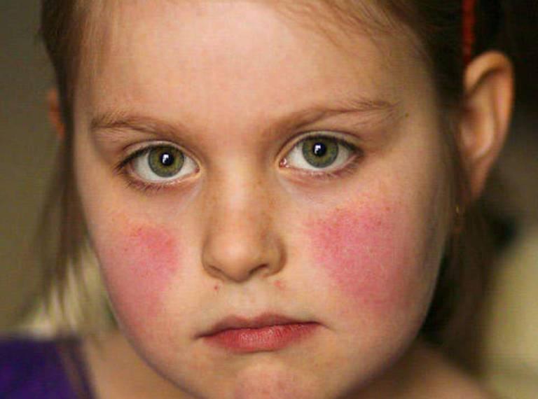 Bệnh Lupus ban đỏ