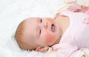 Viêm da cơ địa ở trẻ sơ sinh: Cách chăm sóc và điều trị hiệu quả
