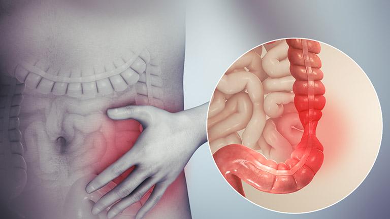 Nguyên dân dẫn đến tình trạng ăn vào là đau dạ dày