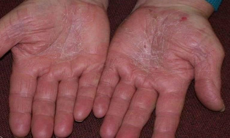Bệnh Á sừng: Nguyên nhân, Triệu chứng, Cách điều trị