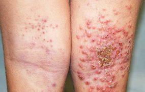Bệnh chàm vi khuẩn là gì? Có nguy hiểm không?