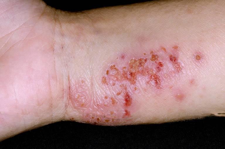 Dấu hiệu nhận biết bệnh vi khuẩn