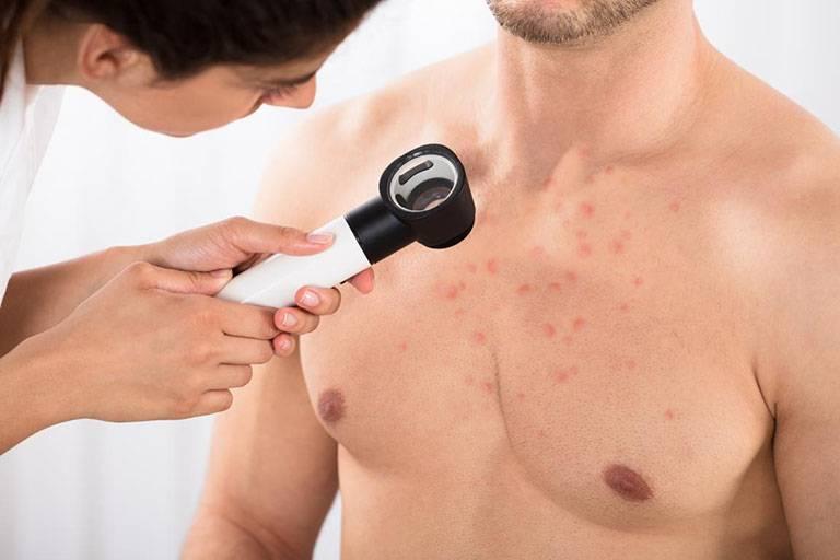 Các phương pháp điều trị bệnh chàm vi khuẩn