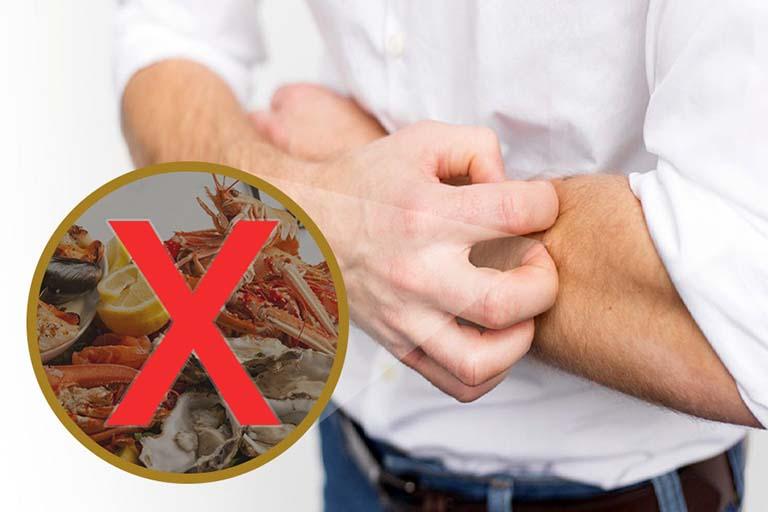 Bệnh phong ngứa không nên ăn gì